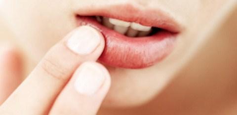 Cara Mencegah dan Mengatasi Bibir Kering Saat Puasa