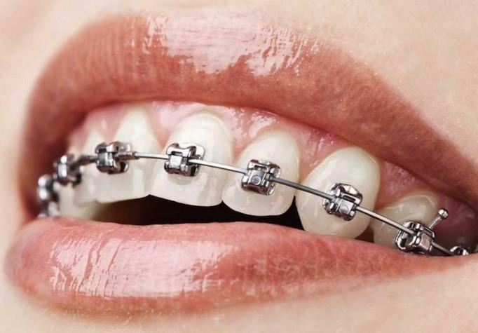 Ini 5 model behel yang populer, gigi rapi dan makin percaya diri